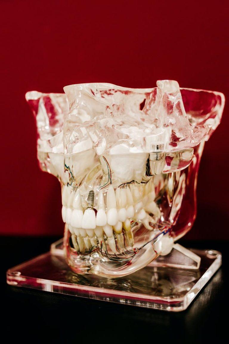 Aparat ortodontyczny sprawi, że przestaniesz się wstydzić wśród znajomych.